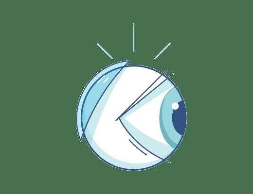 Ilustración de lentillas detrás del globo ocular.