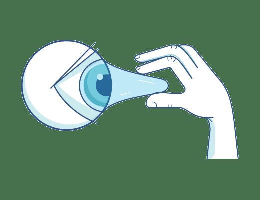 Sacando las lentillas del ojo.