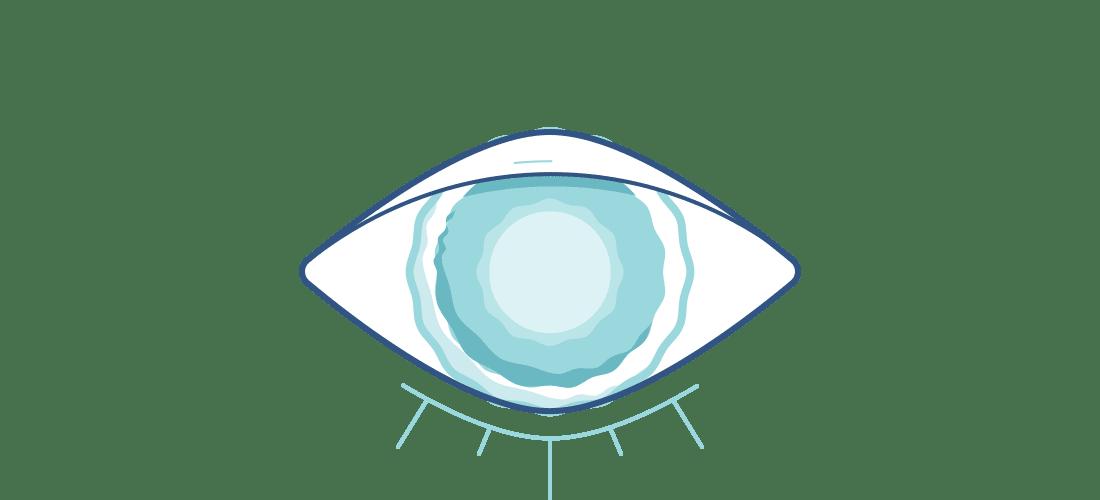 Ilustración de un ojo borroso sin lentillas