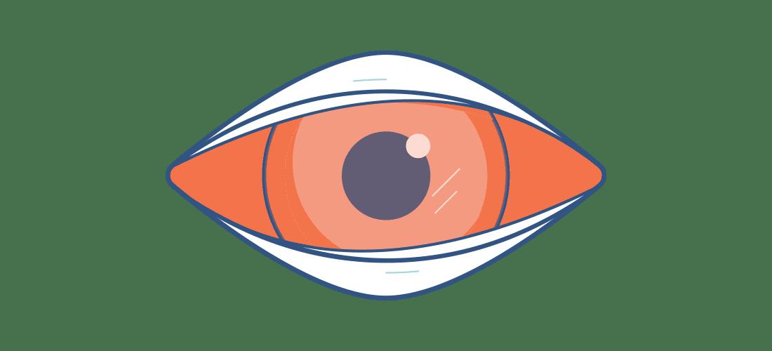 Ilustración de ojo rojizo dolorido