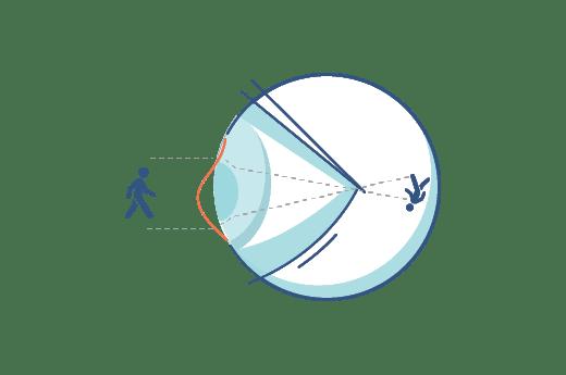 Ilustración de un ojo con astigmatismo