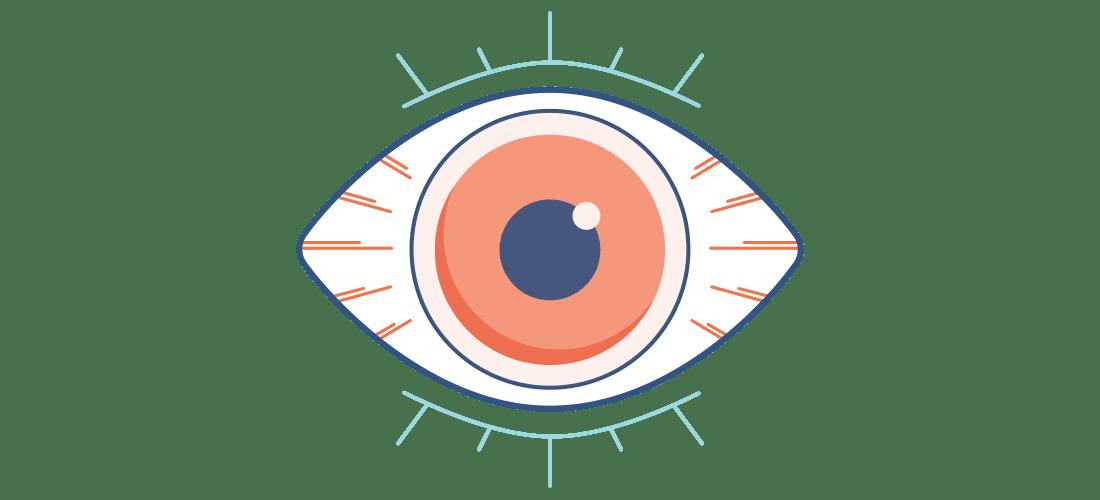 Ilustración de un ojo seco, rojo y dolorido