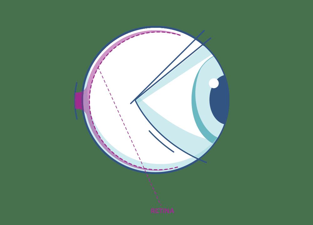 Ilustración de un ojo resaltando la retina