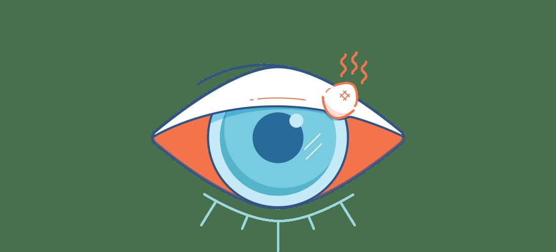 Ilustración de un ojo rojo dolorido con un orzuelo.